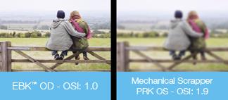 PRK vs EBK